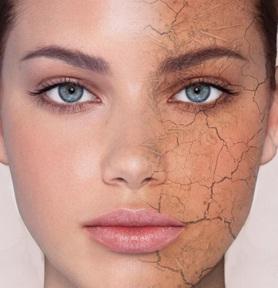 kulit-wajah-kering