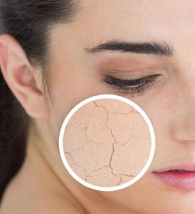kulit wajah kering